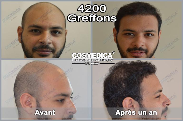 greffedecheveuxenturquie-cosmedica-greff-ede-cheveux-en-turquie-greffons