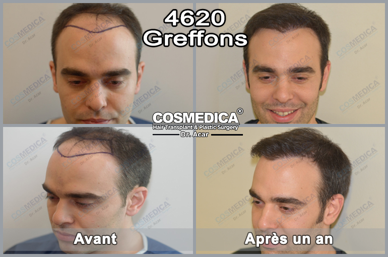 greffedecheveuxenturquie-cosmedica-greff-ede-cheveux-en-turquie