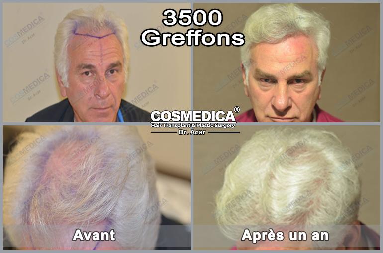 greffedecheveuxenturquie-cosmedica-greff-ede-cheveux-en-turquie-3