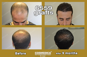 hair-transplant